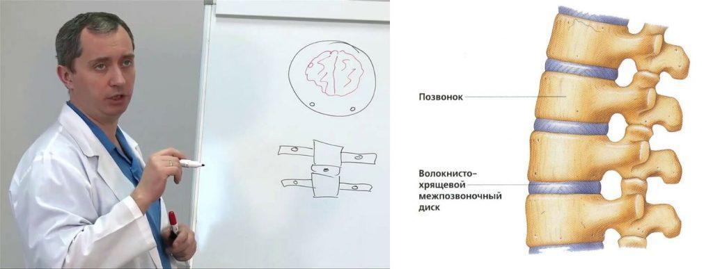 Защемление корешков спинного мозга шейного отдела