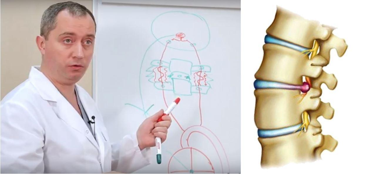 Лечение грыжи шейных позвонков